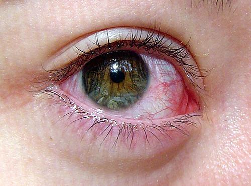 Akių paraudimas