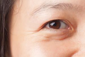 Raukšlelės aplink akis