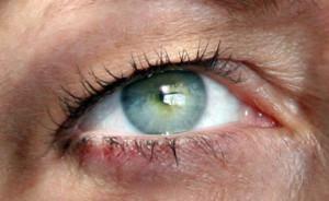 Užkritę viršutiniai akių vokai