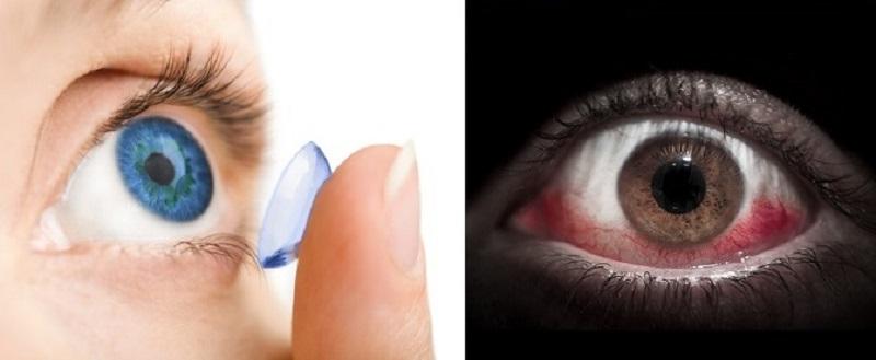 Kontaktinių lęšių priežiūra: šokiruojantys faktai